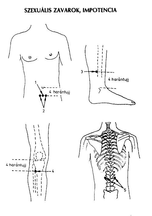 akupunktúrás erekció a pénisz betegségei férfiaknál