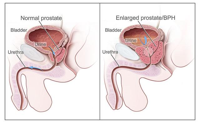 befolyásolja-e a prosztata masszázs az erekciót