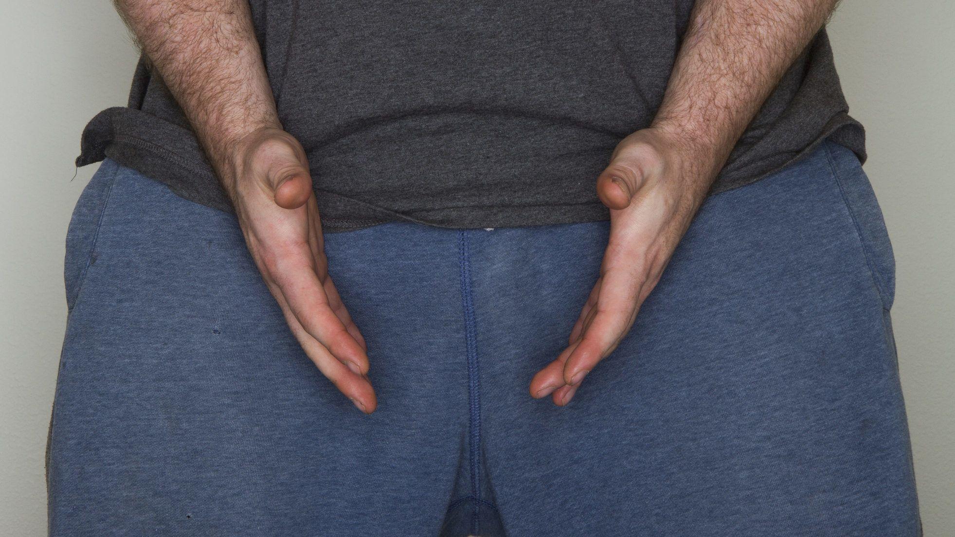 Van-e összefüggés a láb és a pénisz mérete között?