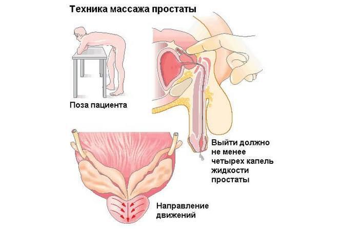 a prosztatagyulladás kezelésének hatása az erekcióra milyen pénisz legyen egy évig