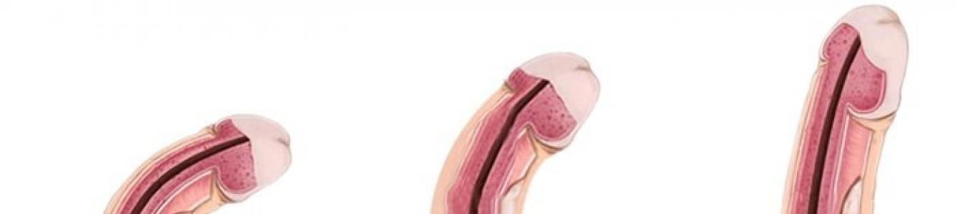 Mekkora a tökéletes pénisz? - EgészségKalauz, Hím péniszek meddig nőnek