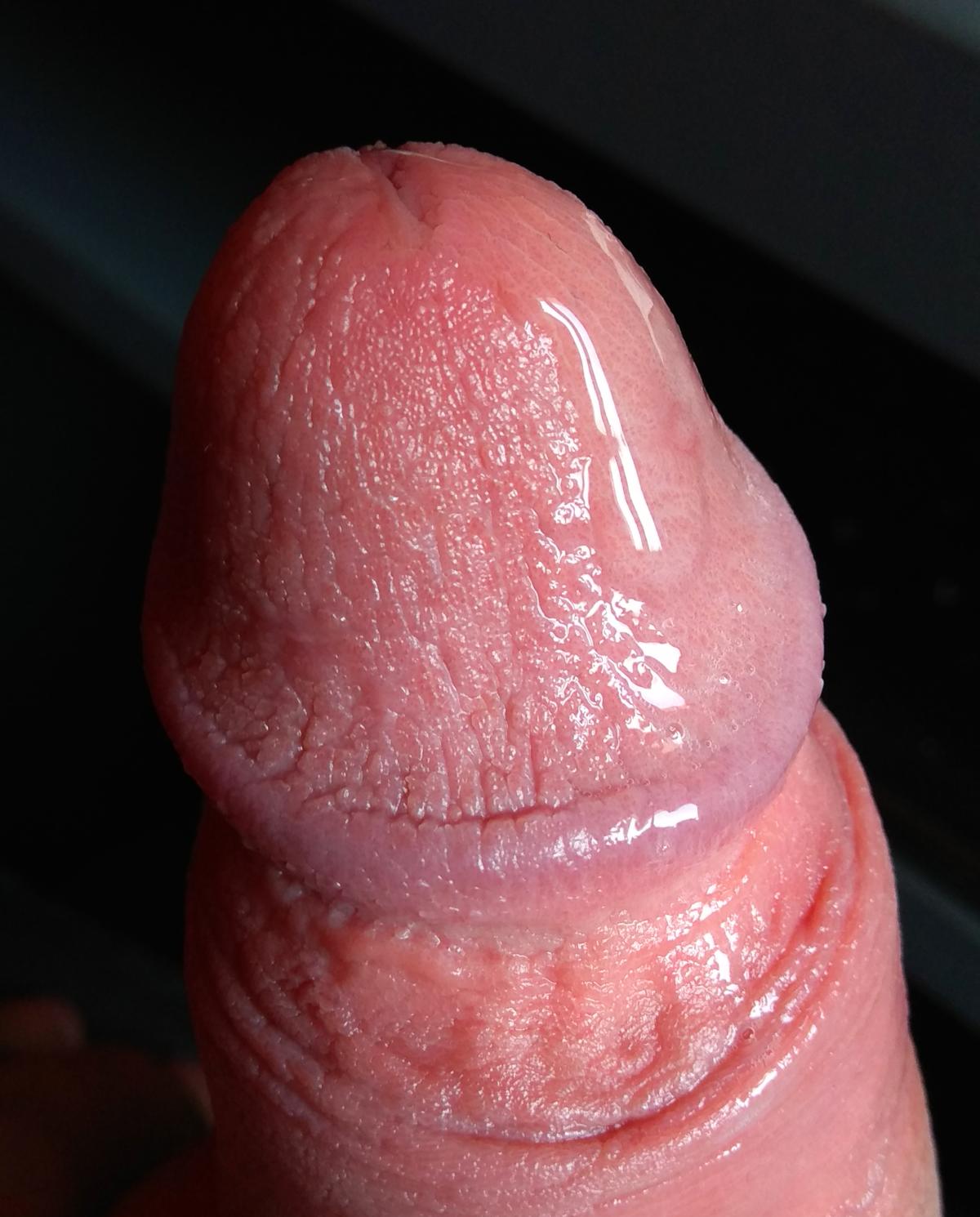 merevedés férfi pénisz)