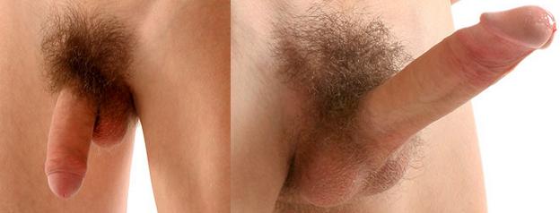 erekció során a pénisz leesik