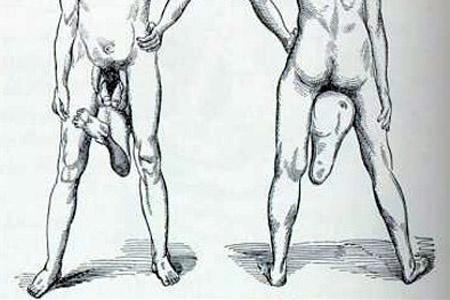a legkisebb pénisszel rendelkező emberek erekciót csökkentő gyógyszer