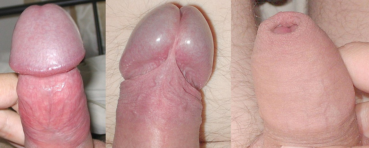 fotó a pénisz erekciós állapotban)