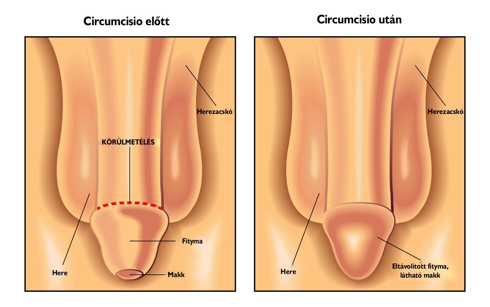 A pénisz nyálkahártyájának helyreállítása - gyopar-glas.hu