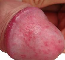 erekcióval kisülés van pontokat az erekció emeléséért
