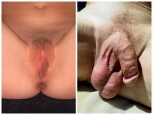 pénisz növekedési szteroidok érzékenység hiánya az erekció során