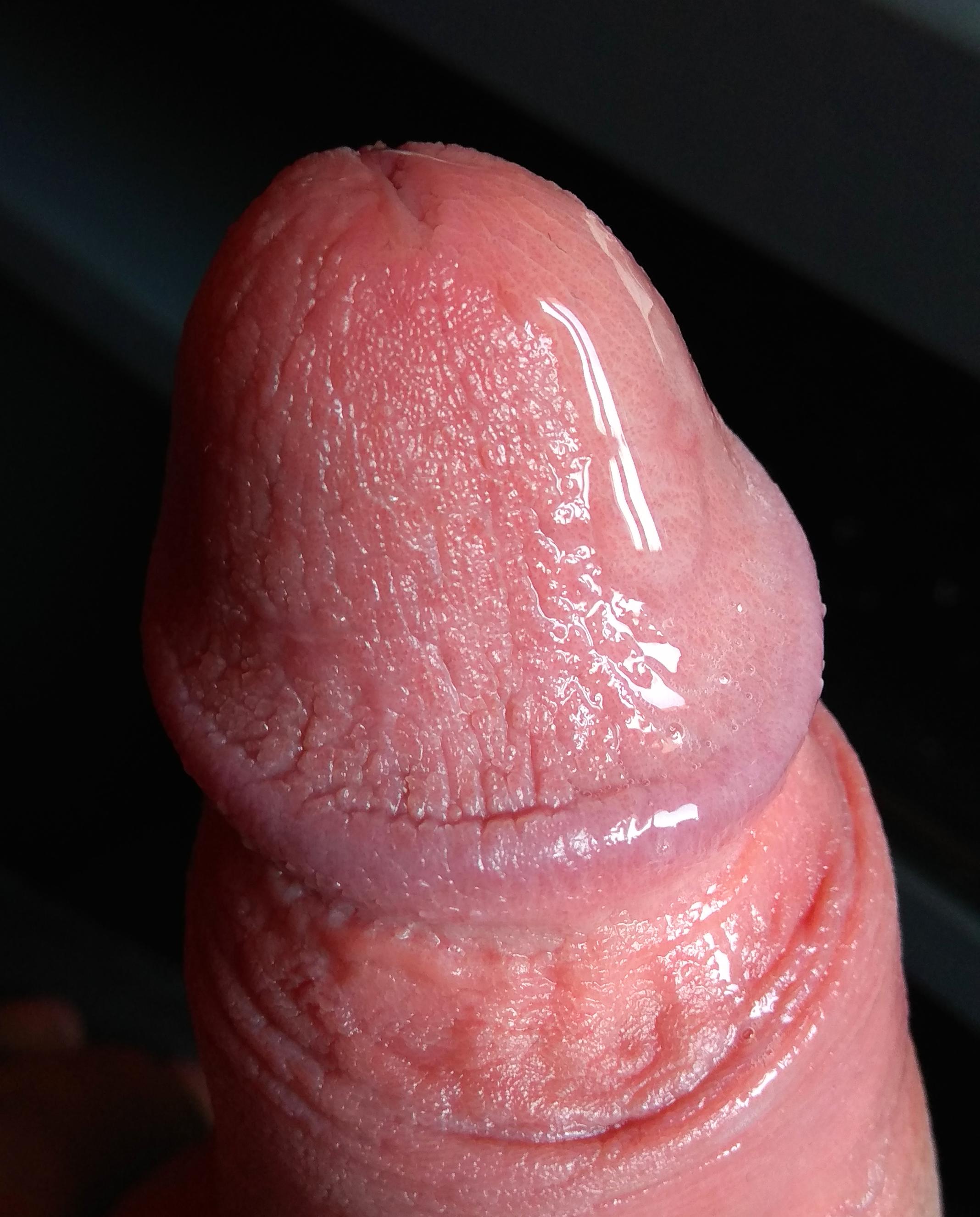 pénisz erekció srácokban