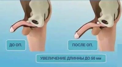 gyűrű a pénisz felállításához