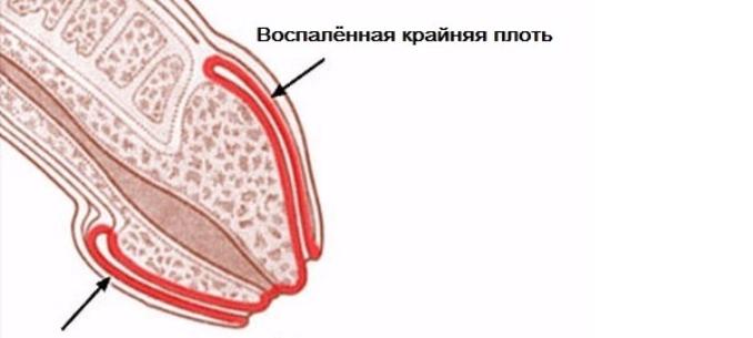 vannak-e izmok a péniszen)
