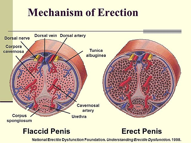 az erekció helyreállítása a brachyterápia után