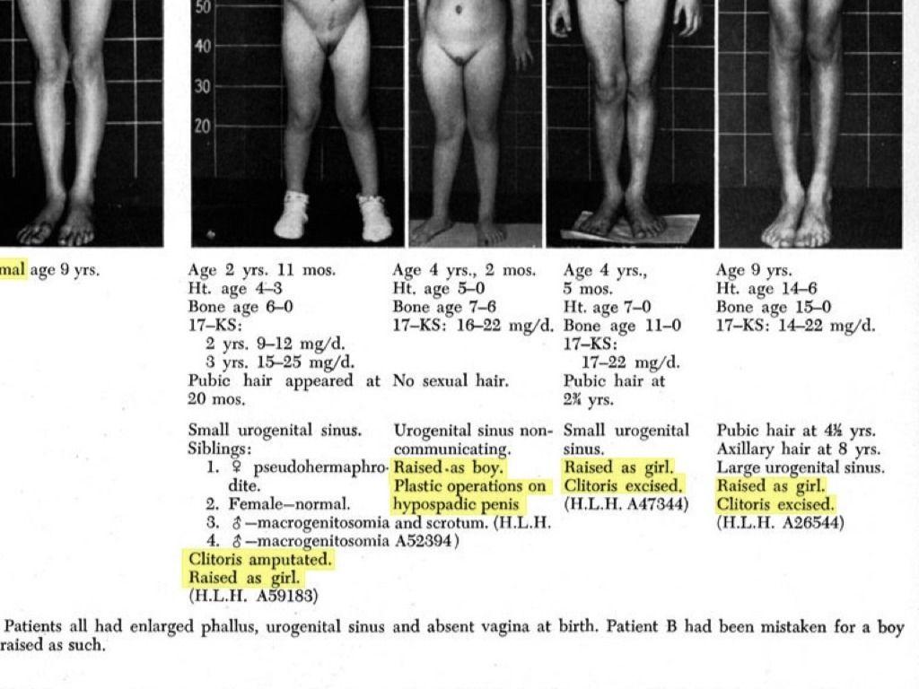 hogyan lehet felismerni a péniszbetegséget hogyan lehet meghosszabbítani az erekciót