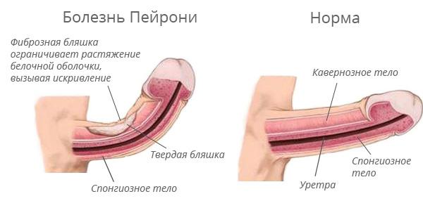 Férfi pénisz megnagyobbodása, A férfi húgyivarrendszer szervei