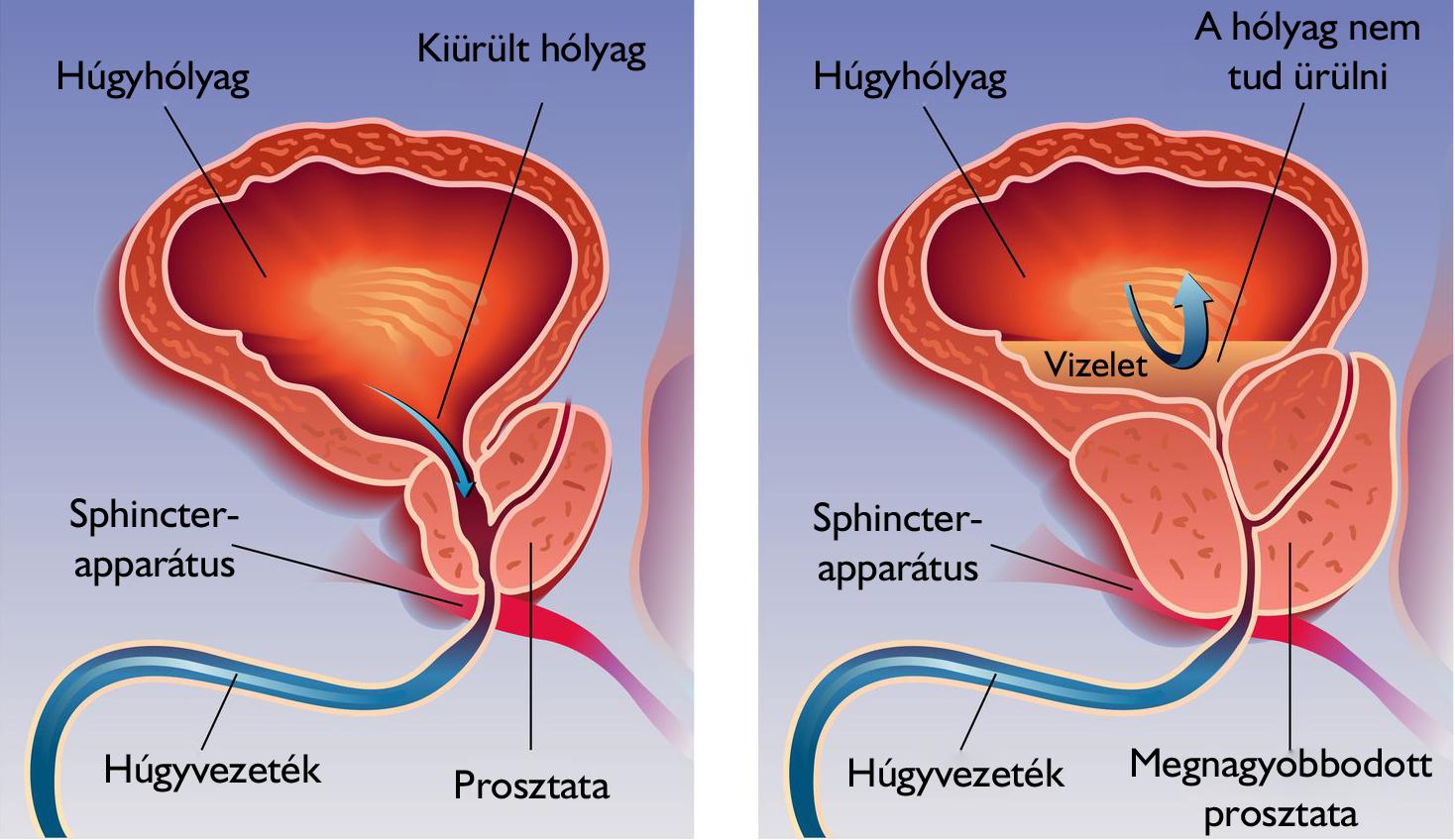 Ha a prosztata fáj a férfiakban A krónikus prosztatitis gyakorlatok összetettsége