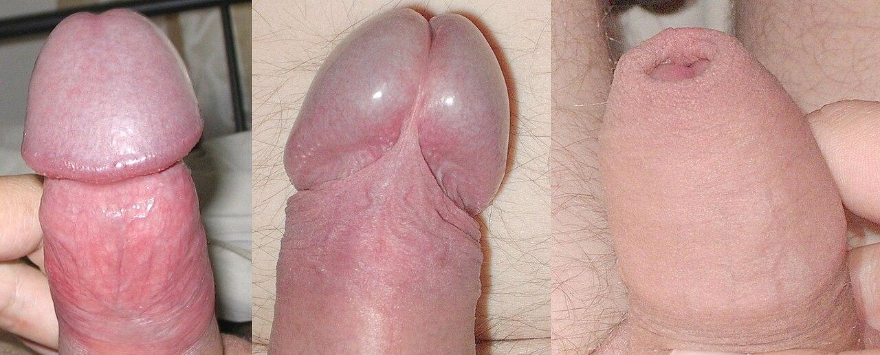 Megmutatták a péniszét a webkamerán