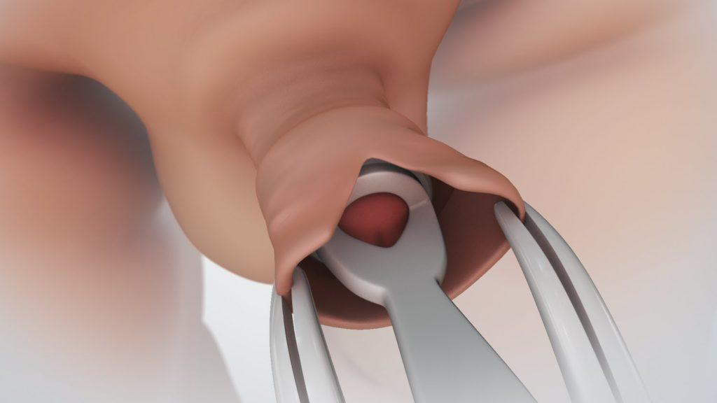 a pénisz nem nő be